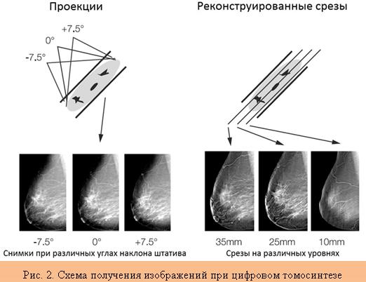 особенность функции томосинтеза