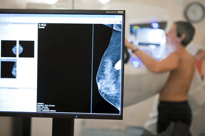 Выбрать маммограф 6 критериев-1