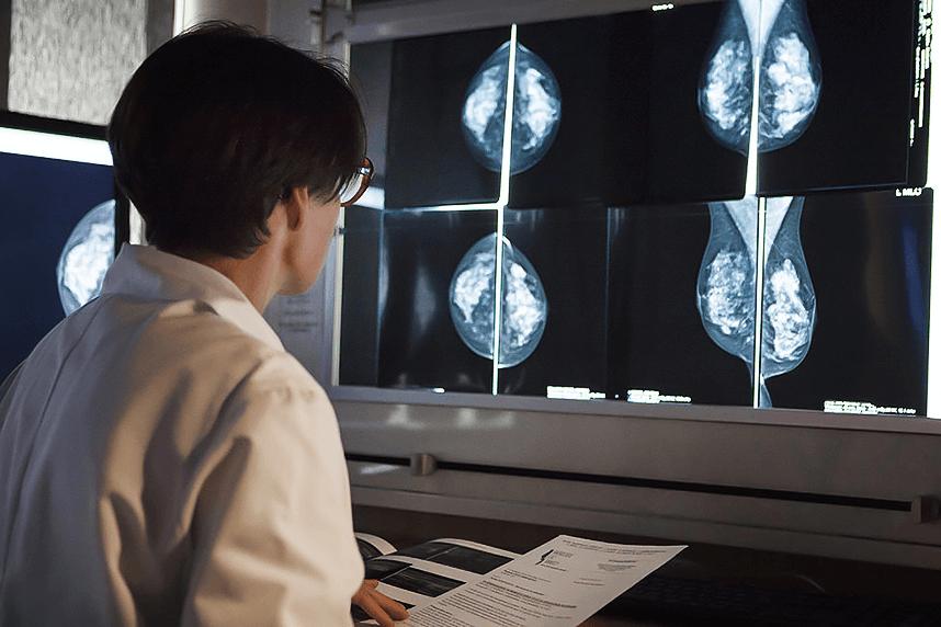 Выбрать маммограф 6 критериев-3