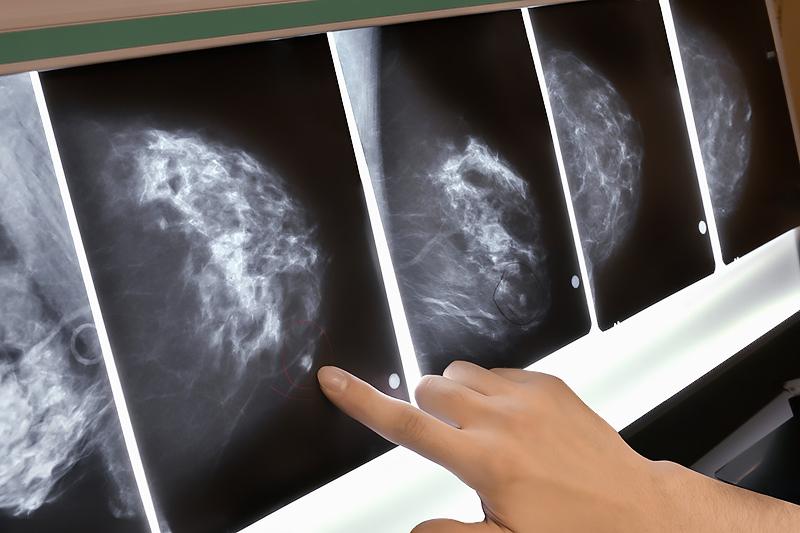 Роль маммографии-1