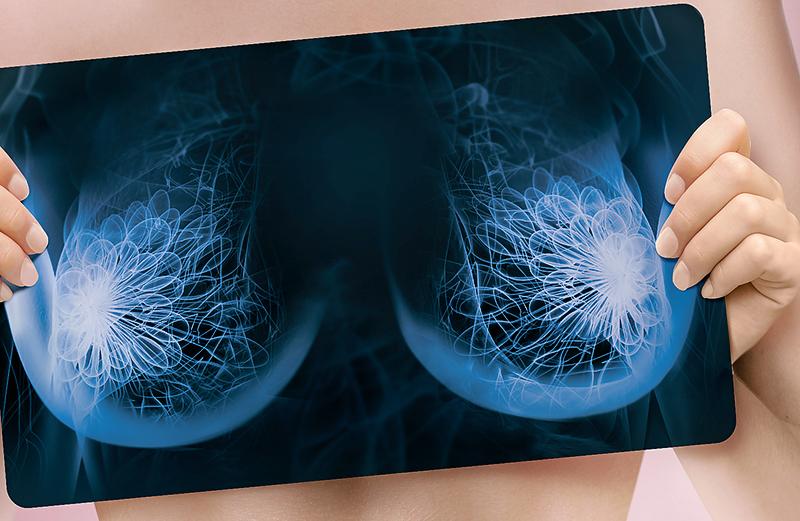 Роль маммографии